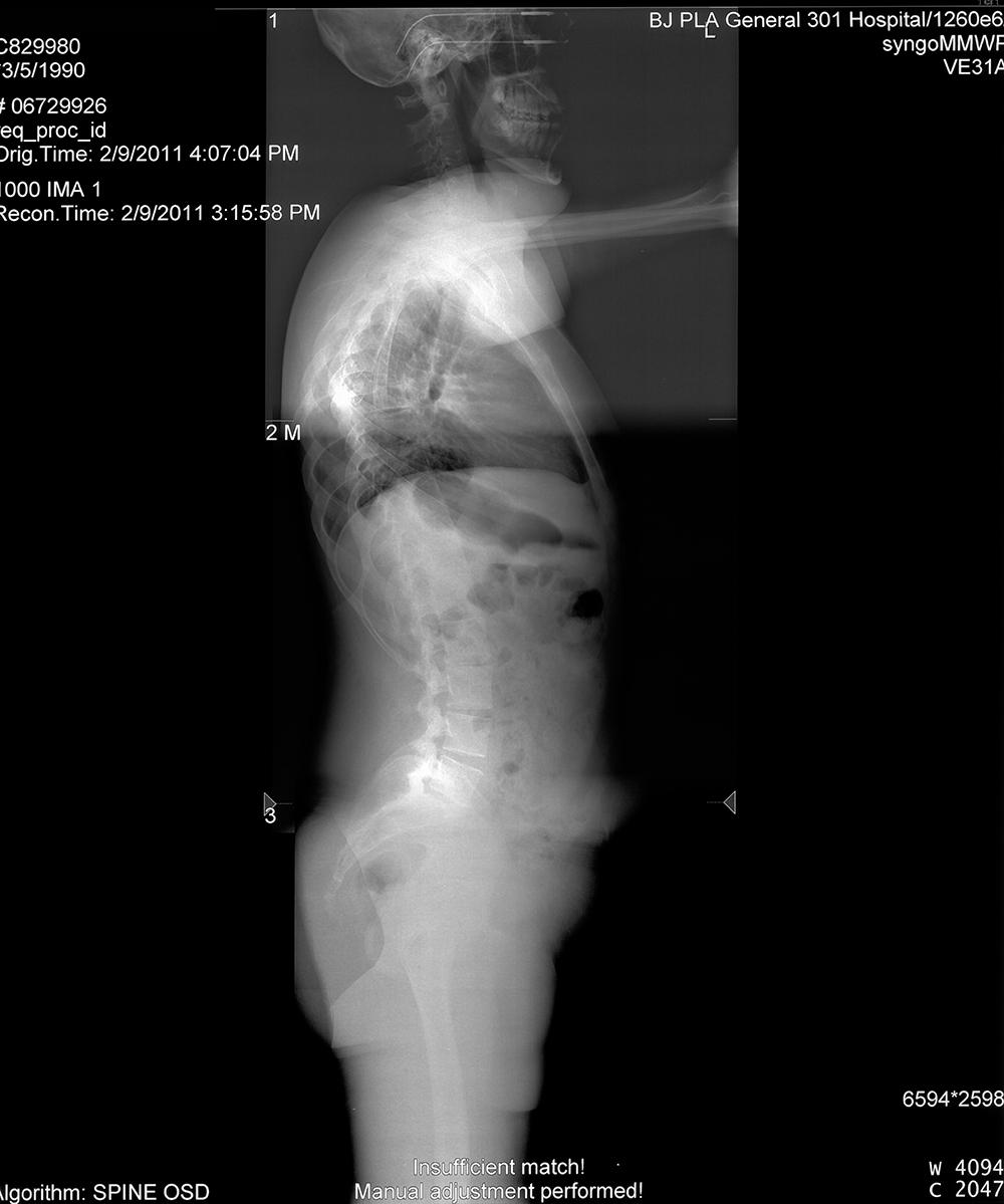 脊柱侧凸后路椎弓螺根钉内固定、植骨融合矫形术