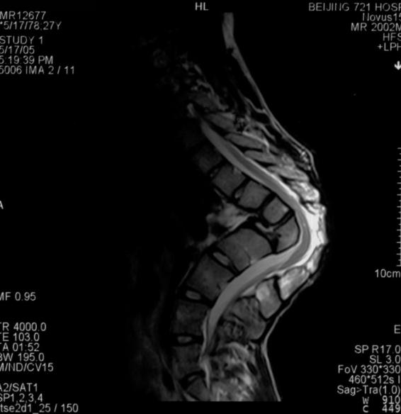 脊柱后凸后路截骨矫形手术致双下肢截瘫